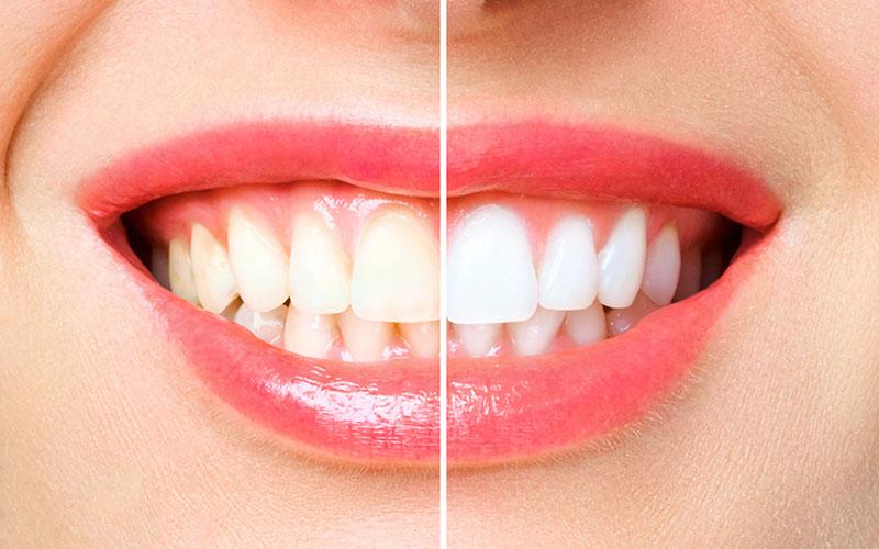 teeth whitening near you