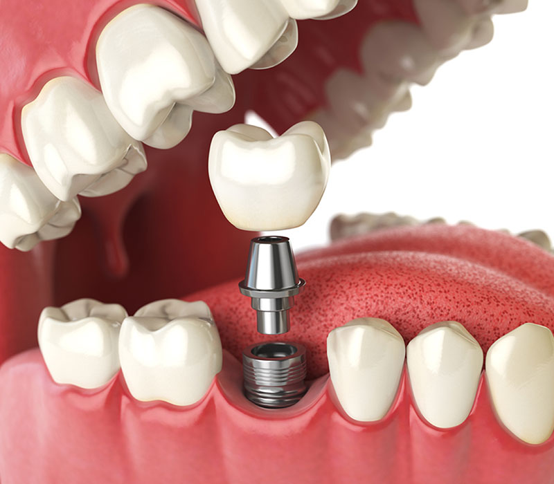 dental implants in kitchener