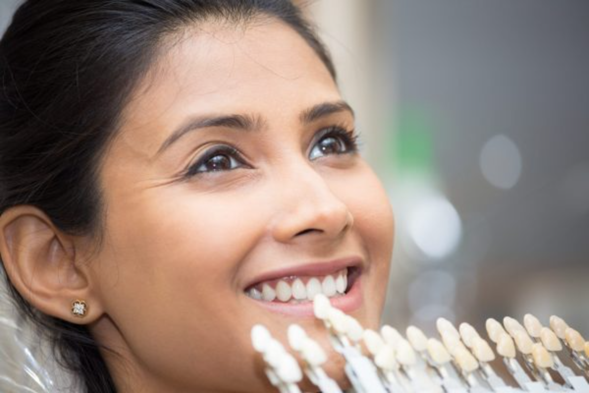 your guide to veneers