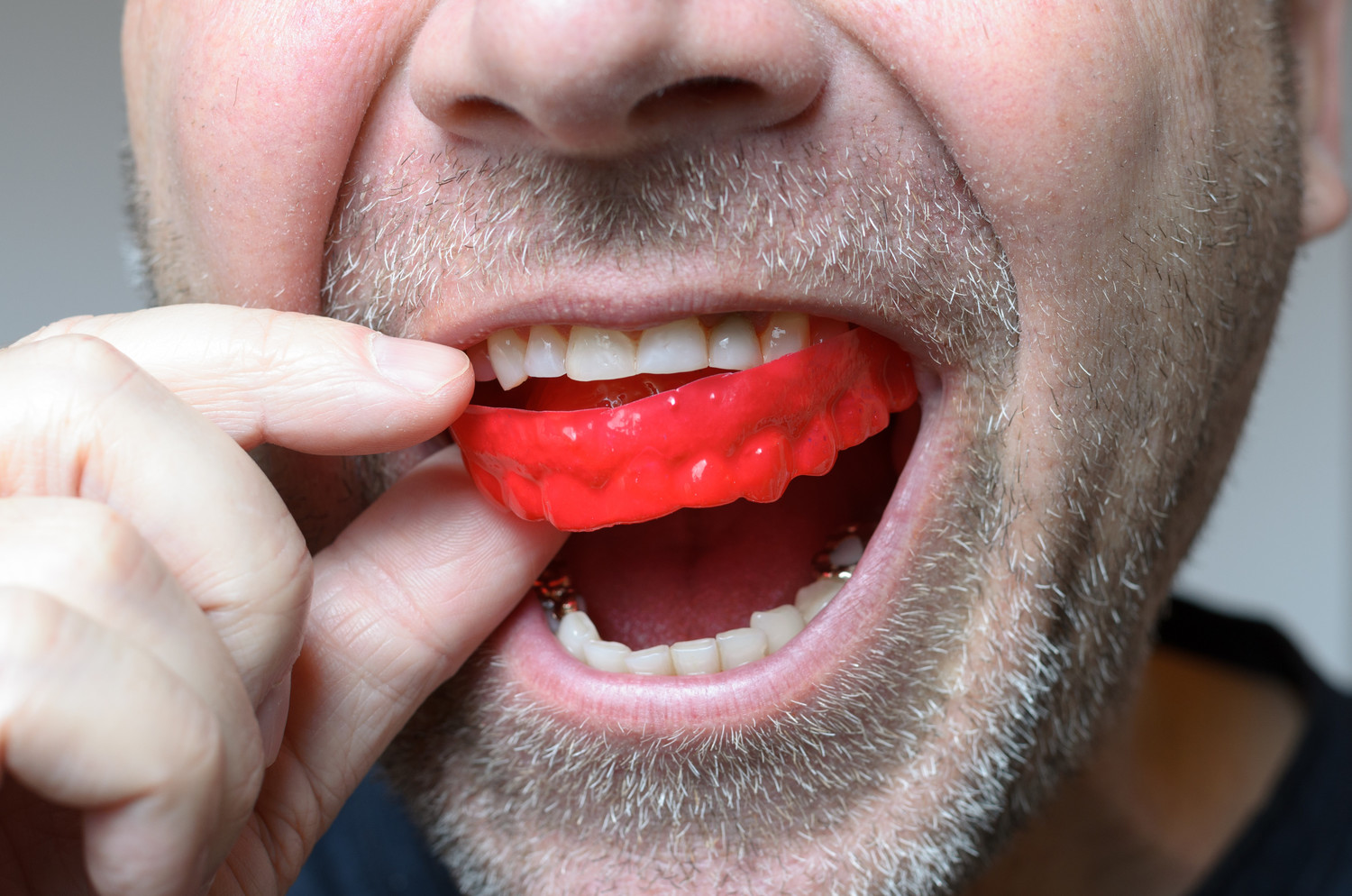 dont-play-sports-without-a-mouth-guard
