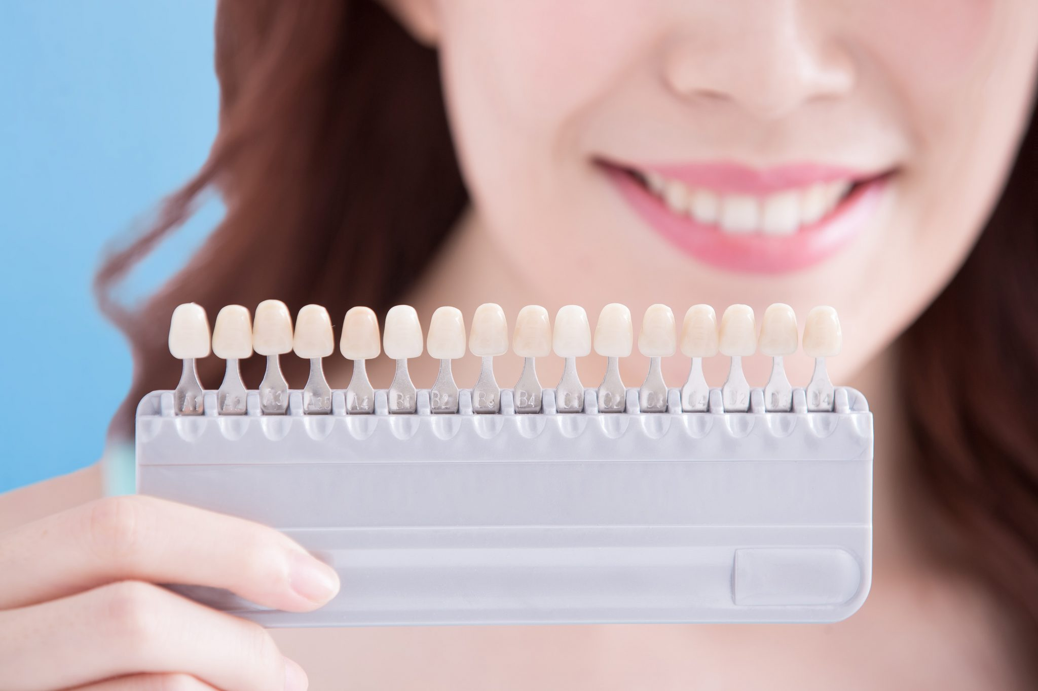 what is the process for getting dental veneers